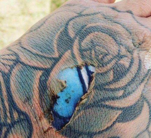 Фото яркой татуировки под кожей в месте ожога вызвали ожесточенные споры в сети